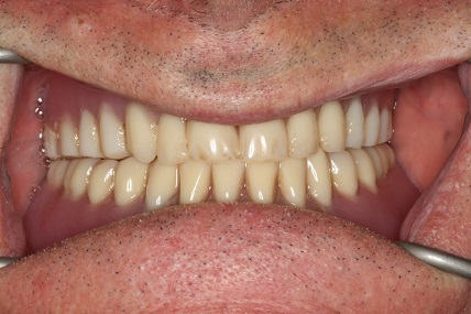Loose lower denture