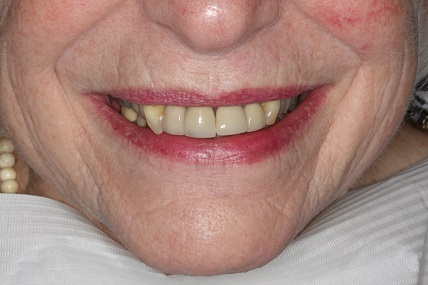 Upper Right Lateral Incisor