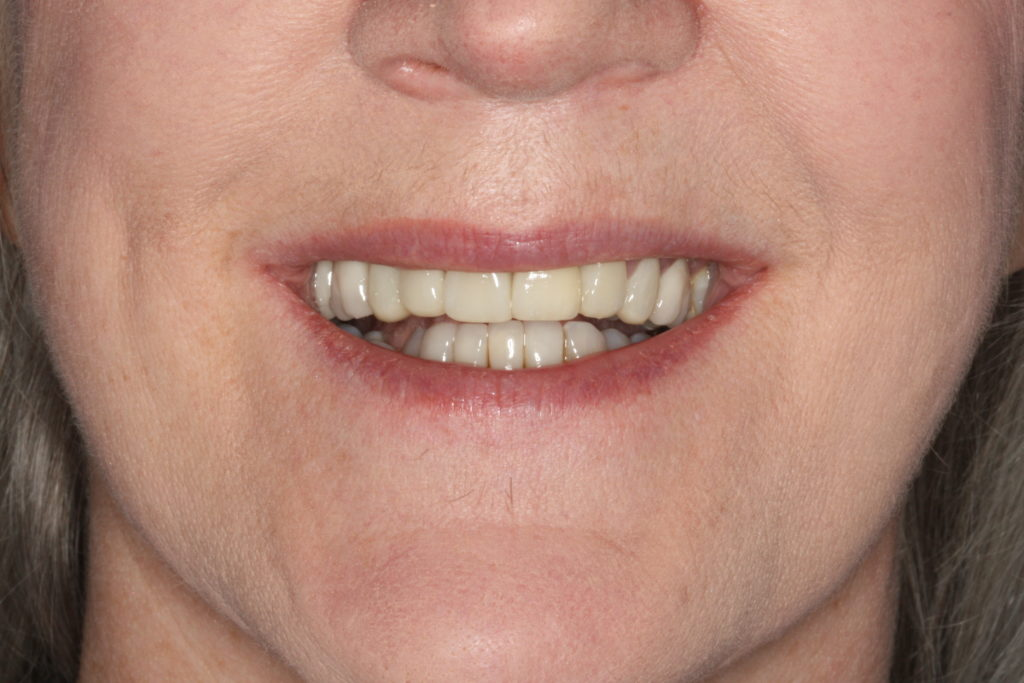 edges of upper front teeth not following lower lip line