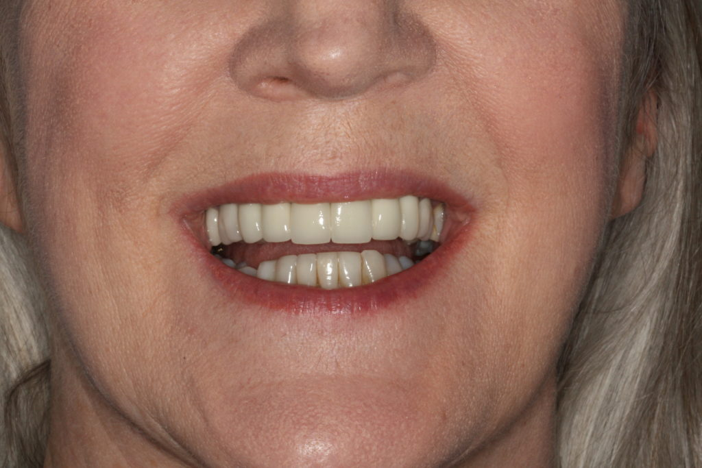 Final crowns with better shape, colour and following lower lip line