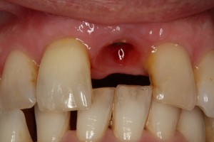 Missing tooth after prototype removed