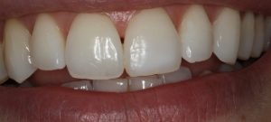 Whitening after 1